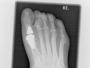 Röntenbild mit Zehengelenkprothese