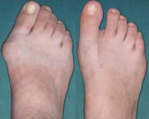 Hallux Valgus: vor und nach der Operation
