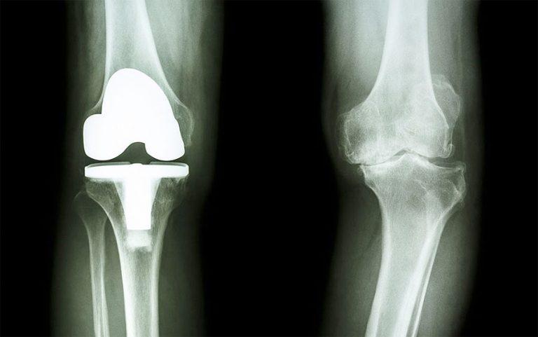 Hüft- und Knie-Endoprothesen