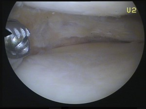 Meniskus nach der Operation