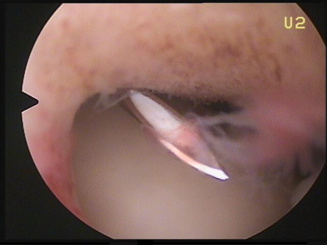 Operation bei Kalkschulter