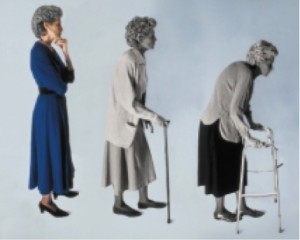 Osteoporose bei Frauen