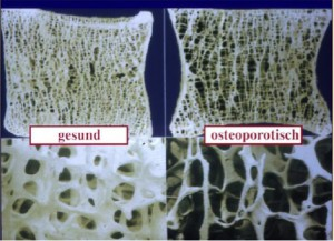Wirbel mit Osteoporose im Querschnitt